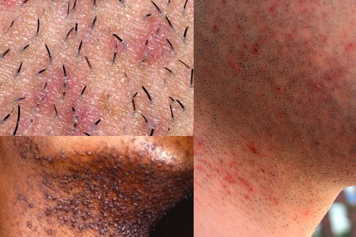 shaving acne