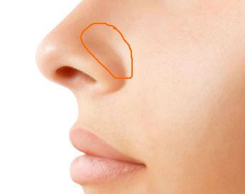 nose side
